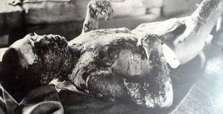 Hiroshima-burn-victim-1