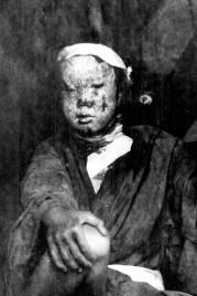 Nagasaki Casualty